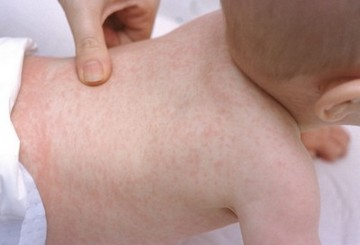 Roseola adult in