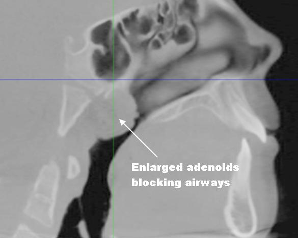 adenoids adult Enlarged