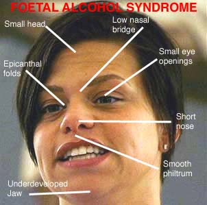 with alcohol syndrome fetal Adult