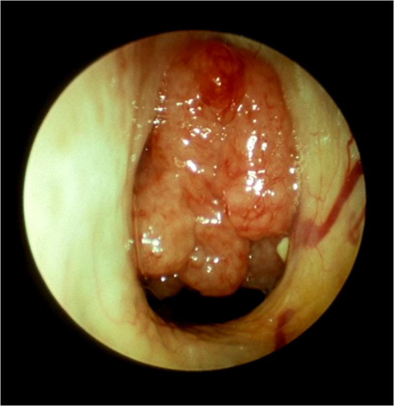 adult Enlarged adenoids