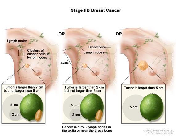 cancer recurrent Metastatic and breast