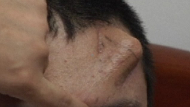 with forehead on man nose Chinese
