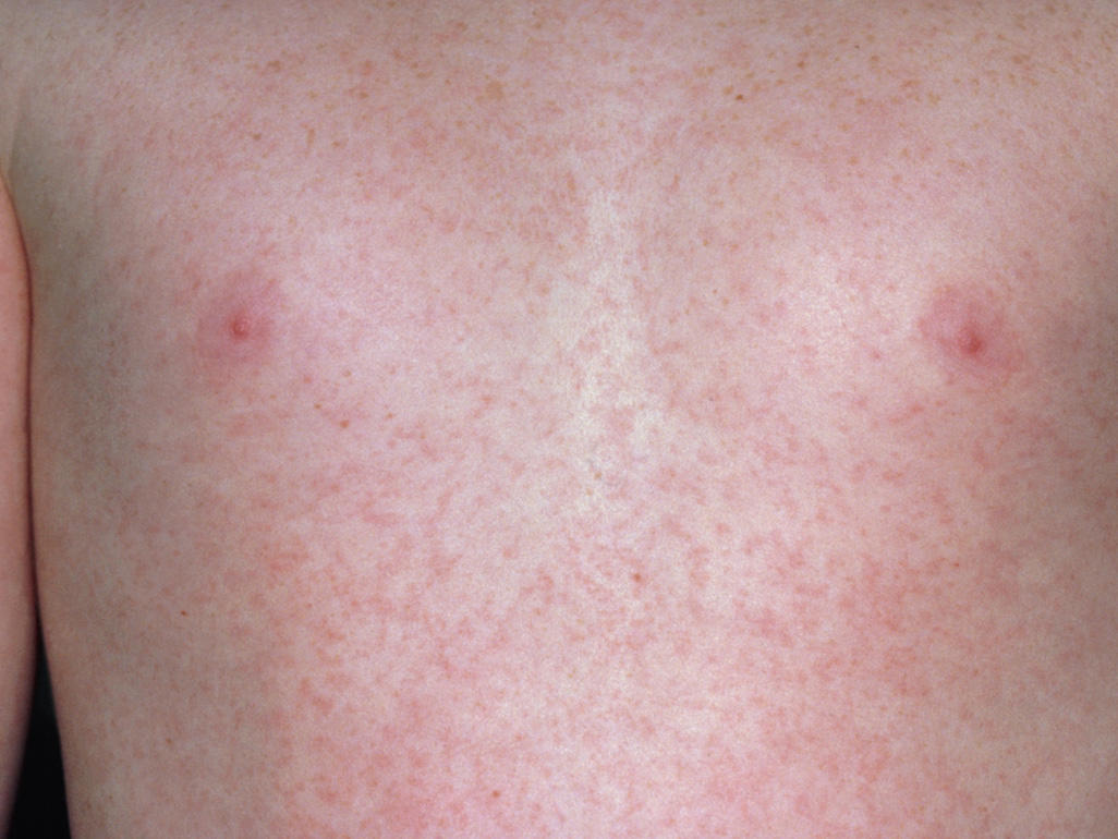 adults Roseola pregnancy in